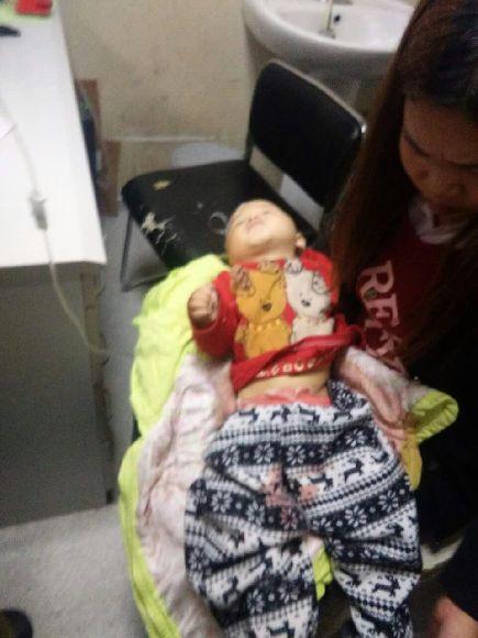 16月大男童地板上熟睡 被自家小狗咬掉生殖器